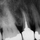 שן 15# צילום ביקורת - סטייה בטיפול הראשוני
