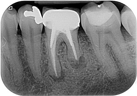 בין אם השן כואבת או לא, האזורים הכהים בקצה השורשים מצביעים על דלקת בשן.