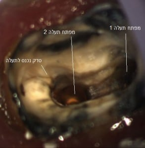 סדק הנכנס לאחת התעלות. שימו לב להגדלה בה רואים את השן במהלך טיפול שורש עם מיקרוסקופ